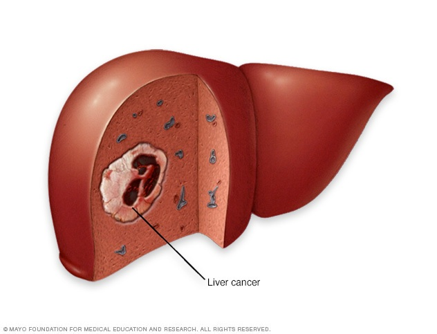 About Liver Cancer, why it happens